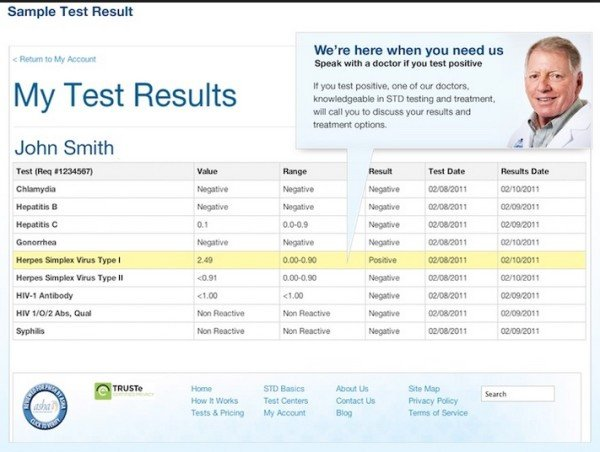 Std Results form Pdf How to Get Std Tested In New York City W O Visiting A Doctor